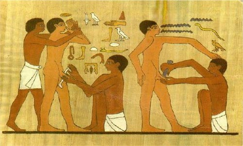 Circumcision In Egypt